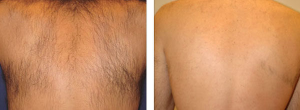 Trajno odstranjevanje dlak hrbet